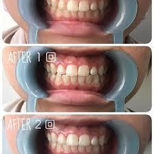 「セルフホワイトニング 歯 イラスト」の画像検索結果