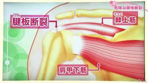 肩 の 痛み 原因