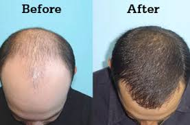 hair transplant how it works hair transplant treatment in hyderabad hair transplant cost in