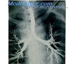 Стафилококковая пневмония Стрептококковая пневмония  стафилококковая пневмония