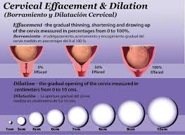 Birth Dilation Chart Cervical Effacement Dilation Chart Birth Doula Cervical