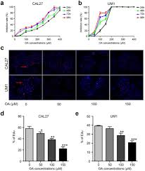Lap Band Bmi Chart Or Oleic Acid Induces Apoptosis And