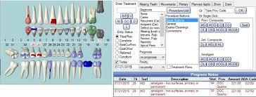Open Dental Software Enter Treatment