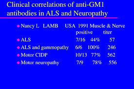 clinical correlations of anti gm1 antibos in als and neuropathy