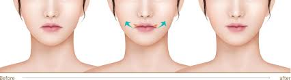 jk plastic surgery center anti aging procedure smile lifting