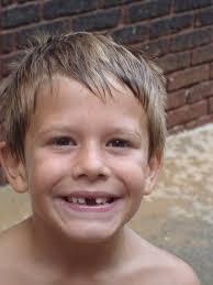 cute venetian boy 2 toothless boy