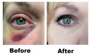 you best makeup to cover black eye