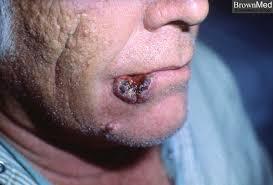 Kết quả hình ảnh cho squamous cell carcinoma