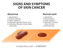 Mole Chart For Skin Cancer Skin Cancer Images Stock Photos Vectors Shutterstock