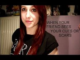 when your best friend sees your self harm scars or cuts