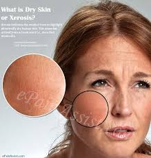 What is Dry Skin or Xerosis & How Long Does it Take To Get Rid of it?
