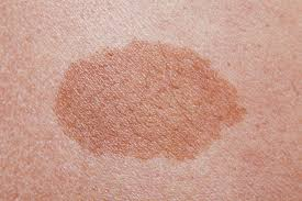why do birthmarks form birthmarks causes types and treatments