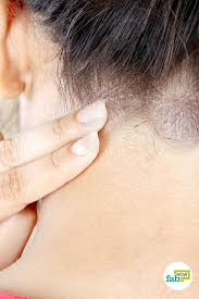 How to Get Rid of Seborrheic Dermatitis: 7 Tried and Tested Remedies ...