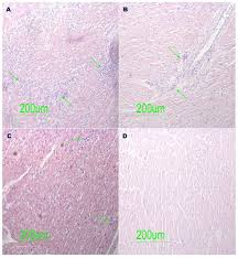 On autopsy, acute (recent onset) myocarditis is characterized by diffuse inflammatory cell infiltration by histology. Sudden Unexpected Death Related To Enterovirus Myocarditis Histopathology Immunohistochemistry And Molecular Pathology Diagnosis At Post Mortem Bmc Infectious Diseases Full Text