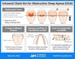 Self Check For Sleep Apnea By Looking At Your Own Mouth All