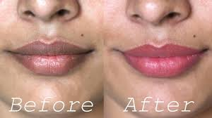 home remes for dark lips