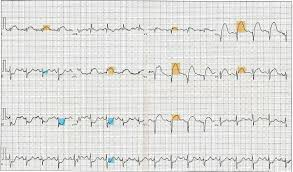 Electrocardiography In Myocardial Infarction Wikipedia