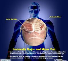 pulled chest muscle pain relief
