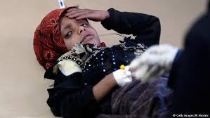 نتيجة بحث الصور عن صور الاصابات بالكوليرا في اليمن