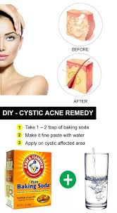15 diy home remes for cystic acne treatment