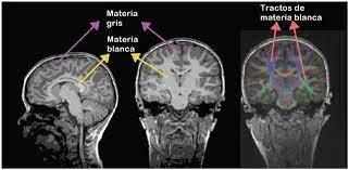 sustancia blanca cerebral función y