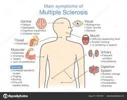Main Symptoms Of Multiple Sclerosis Stock Vector