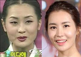where do korean celebrities get plastic surgery makeup and plastic surgery do real wonders korean stars before