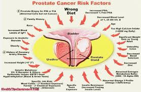 early signs of prostate cancer