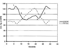 Normal Blood Pressure During Exercise Chart Valsalva Maneuver Wikipedia