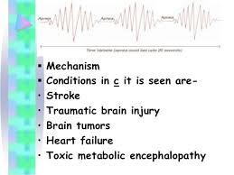 Types Of Breathing Patterns Breathing Patterns 21 638 Jpg Cb 1409615358