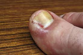 infection in the nail toe ingrown