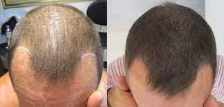 This may seem like an odd suggestion when you're battling thinning hair, but seriously—a hair cut can lessen the appearance of thinning hair. Combat Hair Loss On Men With Scalp Micropigmentation Skalp