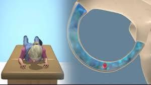 lempert bbq maneuver to treat bppv