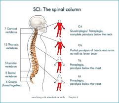 Spinal Cord Injury Chart Living With Attendant Care Spinal Cord Injury