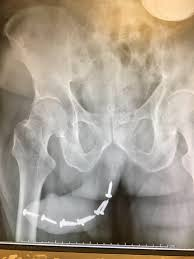Pissed Woman Shoves 12 Screws Into Boyfriend s Penis After He Gets.