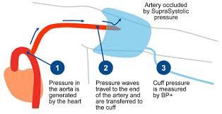 Blood Pressure Diagram Uscom Education