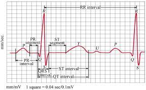 fuse diagram for 1988 honda civic wirdig 1988 dodge ram engine diagram image wiring diagram amp engine