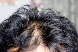 does an oily scalp cause hair loss