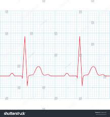 Medical Electrocardiogram Ecg On Grid Paper Stock Vector Royalty