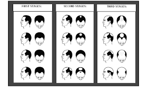 Male Pattern Boldness Unique Diagrams To Show The Pattern Of Hair Loss In Male Pattern Baldness