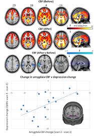 Magic Mushrooms May Reset The Brains Of Depressed Patients