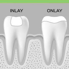 Dental Inlay Inlays Onlays Costa Rica Dental Guide To Best Dentists