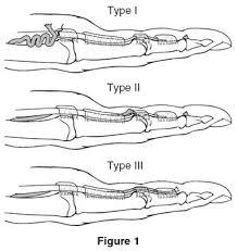 Finger Rom Chart Jersey Finger Hand Orthobullets