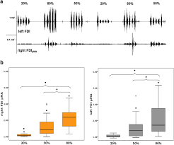 Structural Neural Correlates Of Physiological Mirror