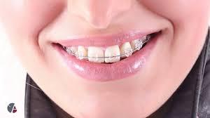 Dental Braces Dentist Dr Michel Fancelli Longeuil Quebec Canada