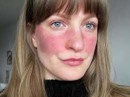 11 people describe what it s really like to have rosacea no