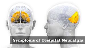 Image result for occipital neuralgia