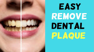 8 remes that will remove tartar plaque and make your teeth white naturally