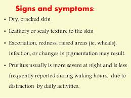 Pruritis or itching