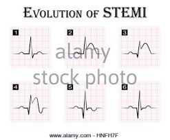 Ecg Of St Elevation Myocardial Infarction Stemi And Detail Of
